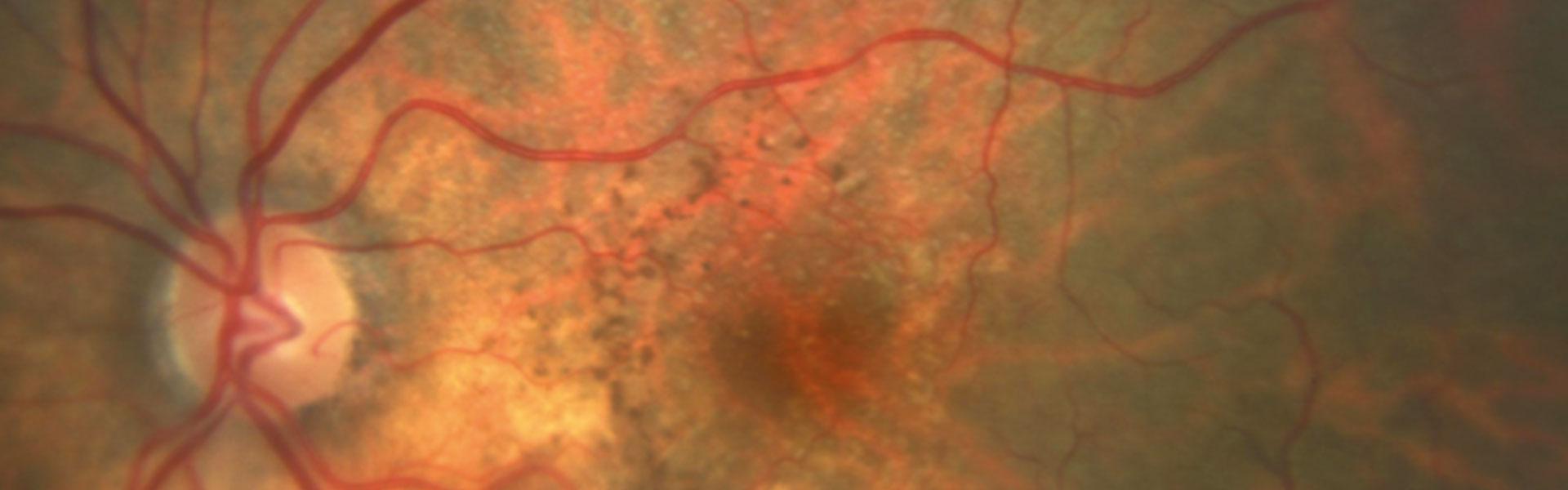 DMAE (Degeneración macular asociada a la edad)