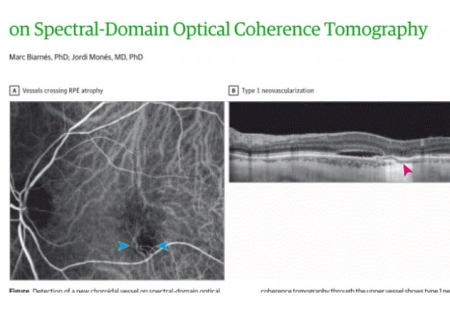publications-direct-visualization-new-choroidal-vessel-spectral-domain-optical-coherence-tomography