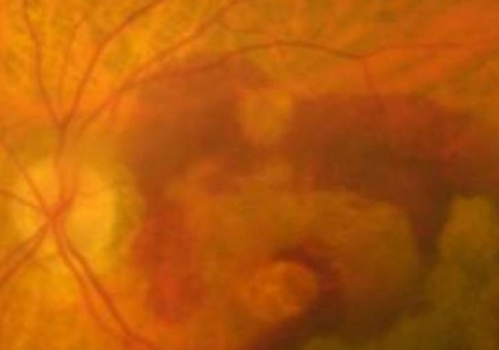 publications-individualized-therapy-ranibizumab-wet-age-related-macular-degeneration