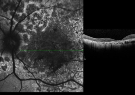 publications-ranibizumab-in-the-treatment-of-choroidal-neovascularization-on-the-border-of-an-inferior-staphyloma-associated-with-tilted-disc-syndrome