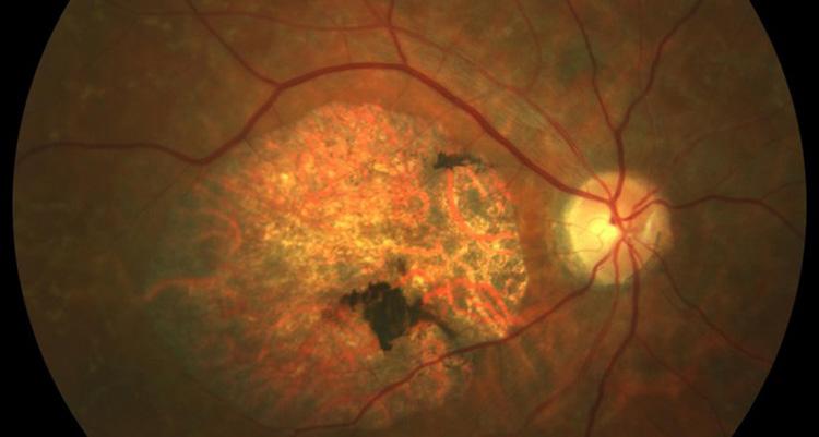 Stargardt S Disease Barcelona Macula Foundation
