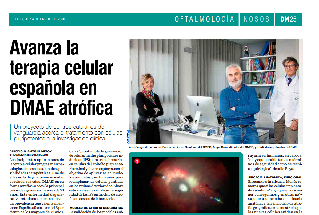 Barcelona Macula Foundation: Research for Vision